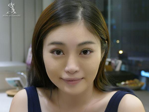 提眉內視鏡提眉雙眼皮手術極緻醫美雙眼皮眼皮下垂提眉手術098.jpg