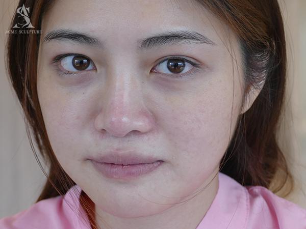 提眉內視鏡提眉雙眼皮手術極緻醫美雙眼皮眼皮下垂提眉手術03