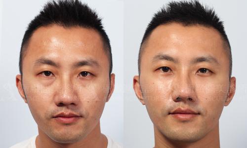 極緻醫美縫線式雙眼皮切割式雙眼皮雙眼皮手術單眼皮內雙大小眼台北整形眼袋內開眼袋手術外開眼袋手術07.jpg