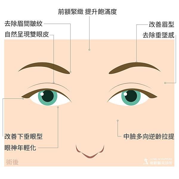 微創拉提微創拉皮費用最新拉皮手術拉皮手術比較中上臉拉提眉手術價格內視鏡提眉手術極緻醫美縫線式雙眼皮切割式雙眼皮雙眼皮手術單眼皮03.jpg