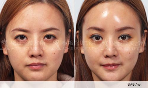 微創拉提微創拉皮費用最新拉皮手術拉皮手術比較中上臉拉提眉手術價格內視鏡提眉手術極緻醫美縫線式雙眼皮切割式雙眼皮雙眼皮手術單眼皮05.png