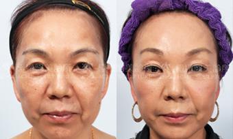 微創拉提微創拉皮費用最新拉皮手術拉皮手術比較中上臉拉提眉手術價格內視鏡提眉手術極緻醫美縫線式雙眼皮切割式雙眼皮雙眼皮手術單眼皮07.png