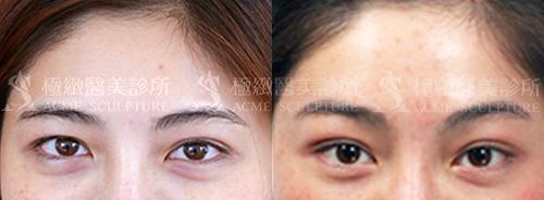 微創拉提微創拉皮費用最新拉皮手術拉皮手術比較中上臉拉提眉手術價格內視鏡提眉手術極緻醫美縫線式雙眼皮切割式雙眼皮雙眼皮手術單眼皮06.png