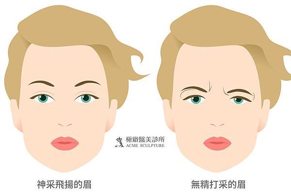 微創拉提微創拉皮費用最新拉皮手術拉皮手術比較中上臉拉提眉手術價格內視鏡提眉手術極緻醫美縫線式雙眼皮切割式雙眼皮雙眼皮手術單眼皮02.jpg