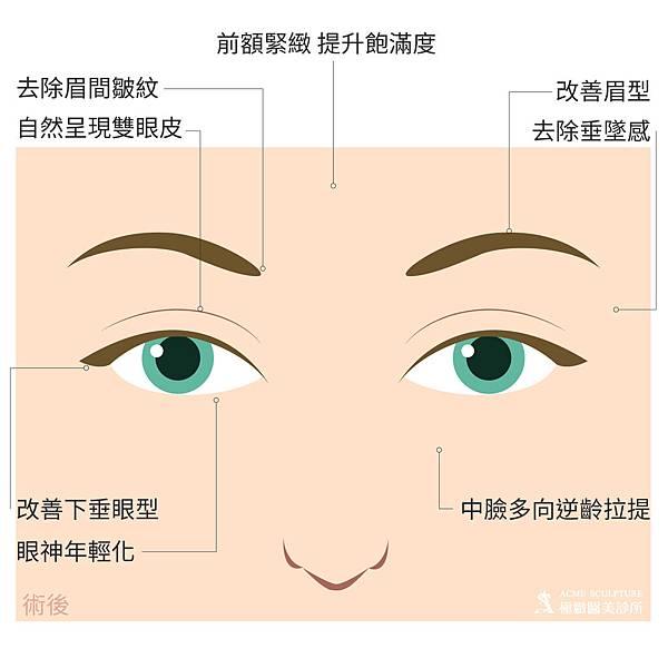 微創拉提微創拉皮費用最新拉皮手術拉皮手術比較中上臉拉提眉手術價格內視鏡提眉手術極緻醫美縫線式雙眼皮切割式雙眼皮雙眼皮手術單眼皮04.jpg