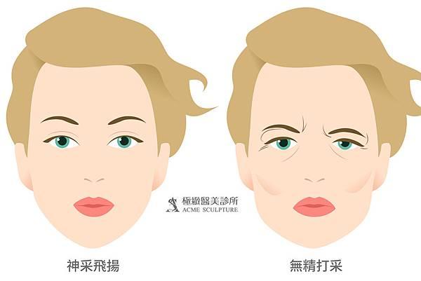 微創拉提微創拉皮費用最新拉皮手術拉皮手術比較中上臉拉提眉手術價格內視鏡提眉手術極緻醫美縫線式雙眼皮切割式雙眼皮雙眼皮手術單眼皮02_1.jpg