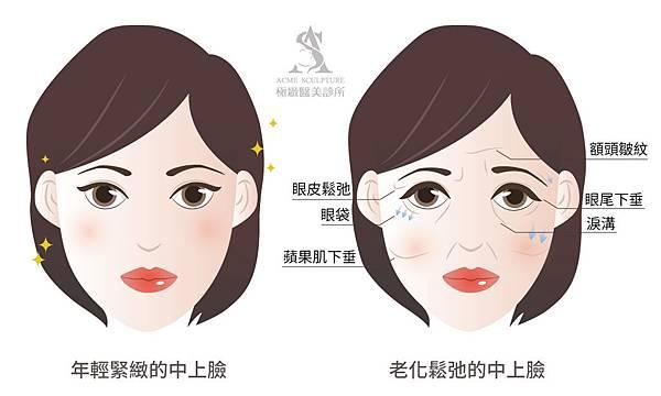 微創拉提微創拉皮費用最新拉皮手術拉皮手術比較中上臉拉提眉手術價格內視鏡提眉手術極緻醫美縫線式雙眼皮切割式雙眼皮雙眼皮手術單眼皮04new.jpg