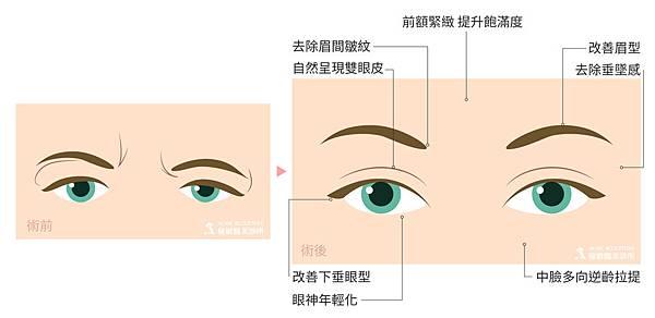 微創拉提微創拉皮費用微創提眉費用最新拉皮手術提眉手術費用內視鏡拉皮費用內視鏡提眉手術中上臉拉提極緻醫美04.jpg