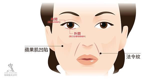 微創拉提微創拉皮費用微創提眉費用最新拉皮手術提眉手術費用內視鏡拉皮費用內視鏡提眉手術中上臉拉提極緻醫美05new.jpg