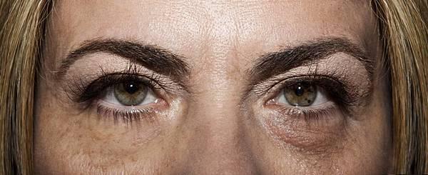 微創拉提微創拉皮費用微創提眉費用最新拉皮手術提眉手術費用內視鏡拉皮費用內視鏡提眉手術中上臉拉提極緻醫美03.jpg