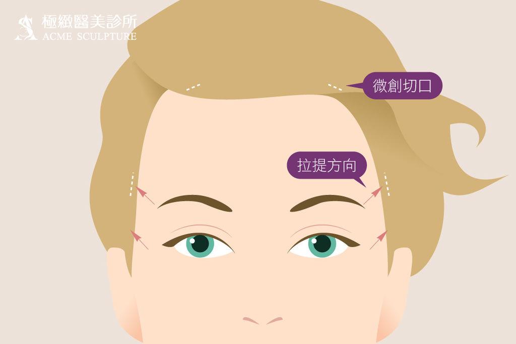微創拉提微創拉皮費用微創提眉費用最新拉皮手術提眉手術費用內視鏡拉皮費用內視鏡提眉手術中上臉拉提極緻醫美04new.jpg