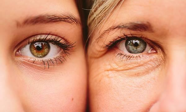 微創拉提微創拉皮費用微創提眉費用最新拉皮手術提眉手術費用內視鏡拉皮費用內視鏡提眉手術中上臉拉提極緻醫美02.jpg