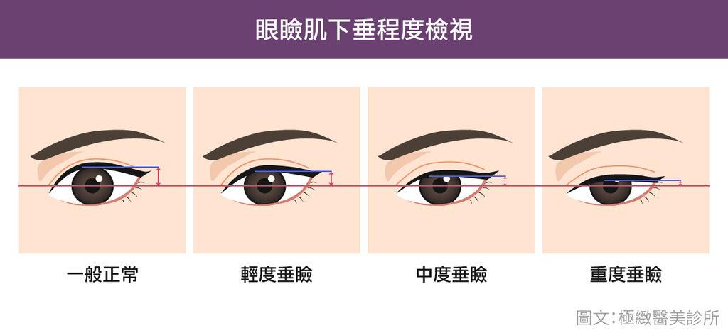 提眼肌手術費用提眼肌手術風險提眼肌手術復原提眼肌手術權威提眼肌手術ptt提眼肌手術推薦提眼肌手術失敗提眼肌手術價格隱形.jpg