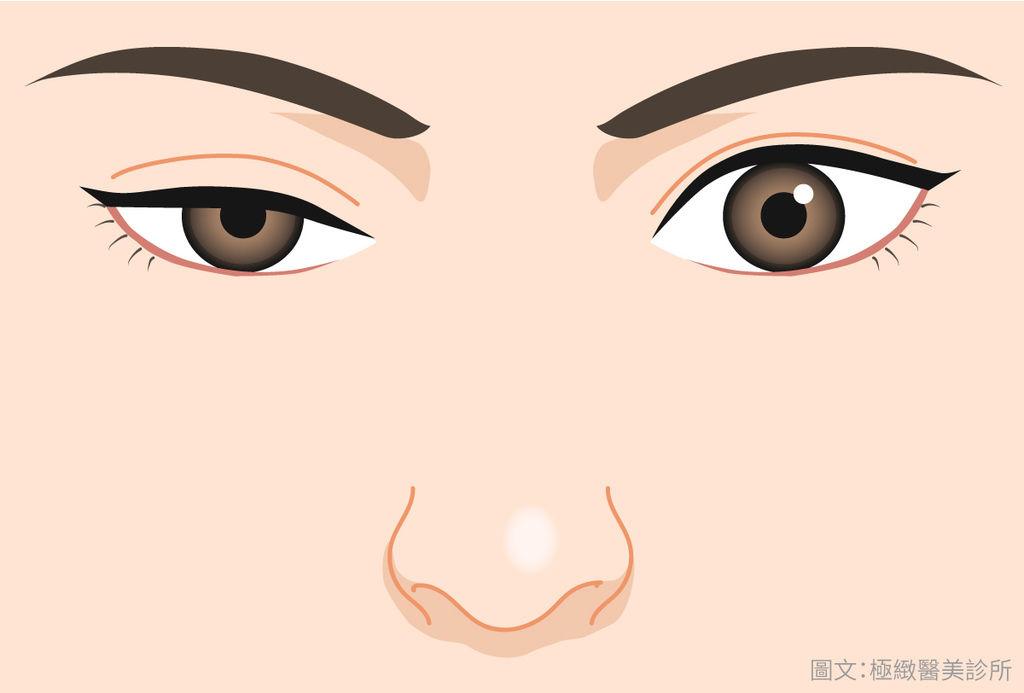 提眼肌手術費用提眼肌手術風險提眼肌手術復原提眼肌手術權威提眼肌手術ptt提眼肌手術推薦提眼肌手術失敗提.jpg