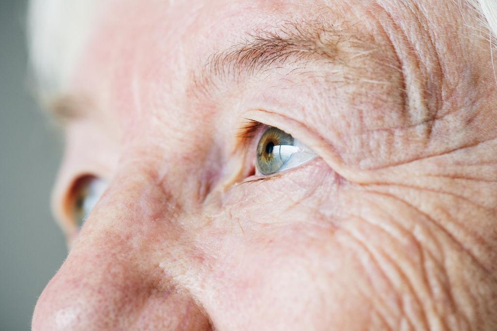提眉失敗提眉手術ptt微創提眉費用內視鏡提眉ptt提眉肌ptt微創提眉費用ptt提眉台中提眉手術醫生推薦太陽穴提眉內視鏡拉皮術後.jpg