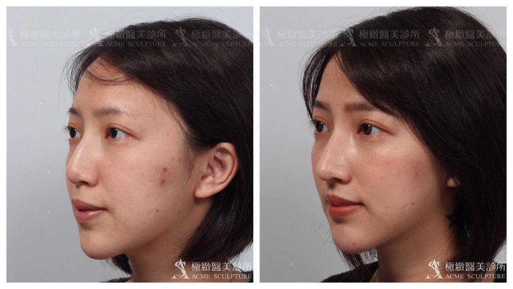 韓式隆鼻隆鼻恢復期隆鼻ptt隆鼻男隆鼻失敗隆鼻推薦2018隆鼻材質.jpg