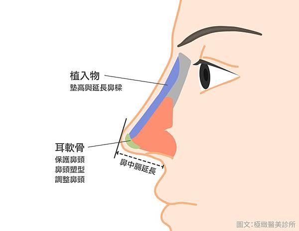隆鼻後遺症隆鼻恢復期隆鼻推薦台北隆鼻隆鼻權威台北隆鼻推薦顏正安.jpg
