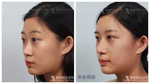 隆鼻推薦台北隆鼻隆鼻隆鼻權威隆鼻手術結構式隆鼻台北隆鼻推薦.jpg