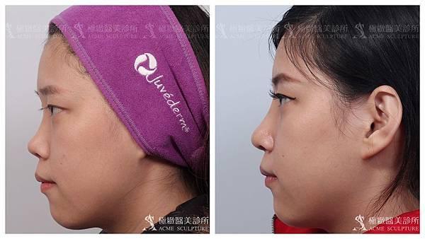 隆鼻推薦台北隆鼻隆鼻隆鼻權威隆鼻手術結構式隆鼻台北隆鼻推薦隆鼻.jpg