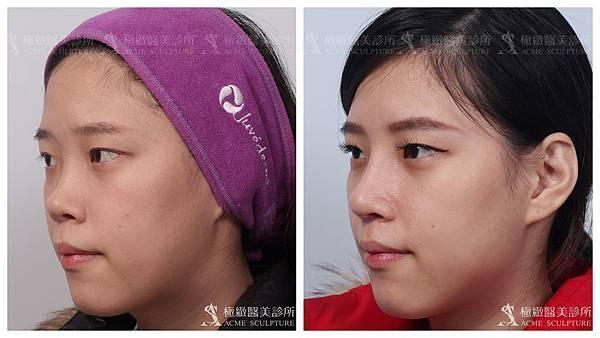 隆鼻推薦台北隆鼻隆鼻隆鼻權威隆鼻手術結構式隆鼻台北隆鼻推薦隆鼻隆鼻.jpg