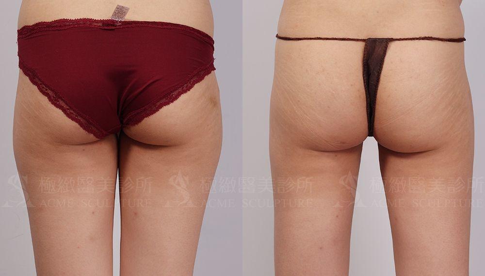 威塑抽脂威塑溶脂抽脂手術極緻醫美抽脂多少錢價格案例威塑好嗎自體脂肪隆乳抽脂手術術後恢復期 (10).jpg