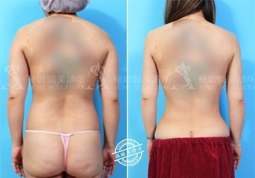 威塑抽脂威塑溶脂抽脂手術極緻醫美抽脂多少錢價格案例威塑好嗎自體脂肪隆乳抽脂手術術後恢復期 (12).jpg