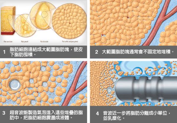威塑抽脂台灣抽脂手術推薦二代威塑超音波抽脂費用抽脂副作用抽脂手術失敗案例 (4).png