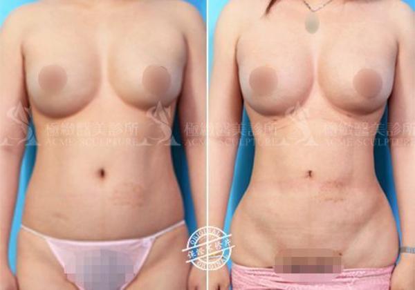 威塑抽脂台灣抽脂手術推薦二代威塑超音波抽脂費用抽脂副作用抽脂手術失敗案例 (5).png