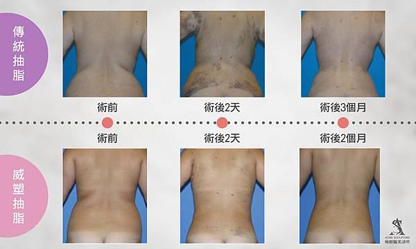 威塑抽脂台灣抽脂手術推薦二代威塑超音波抽脂費用抽脂副作用抽脂手術失敗案例 (2).jpg