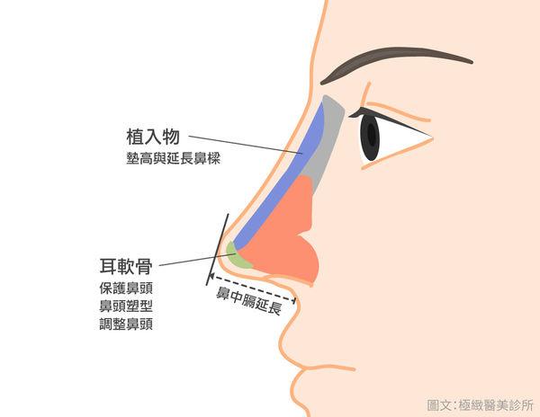 隆鼻副作用隆鼻多少錢隆鼻痛嗎台北極緻台灣隆鼻PTT隆鼻手術案例分享dcard結構式隆鼻價錢結構式隆鼻好嗎極緻隆鼻好嗎顏正安醫生隆鼻韓式隆鼻介紹隆鼻種類推薦隆鼻中山區醫美整形 (7)