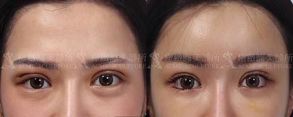 微創拉提拉皮提眉雙眼皮手術失敗提眉極緻dcard雙眼皮手術台北台灣提眉香港提眉手術提眼瞼肌極緻提眉推薦提眉多少錢