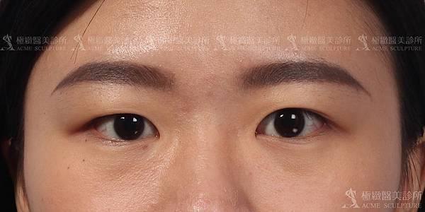 雙眼皮手術台北極緻雙眼皮dcard暑假雙眼皮割雙眼皮縫雙眼皮多少錢雙眼皮失敗提眉手術極緻雙眼皮推薦雙眼皮手術多少錢雙眼皮恢復期多久 (4)
