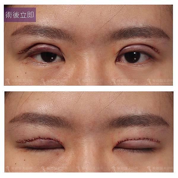雙眼皮手術台北極緻雙眼皮dcard暑假雙眼皮割雙眼皮縫雙眼皮多少錢雙眼皮失敗提眉手術極緻雙眼皮推薦雙眼皮手術多少錢雙眼皮恢復期多久 (5)