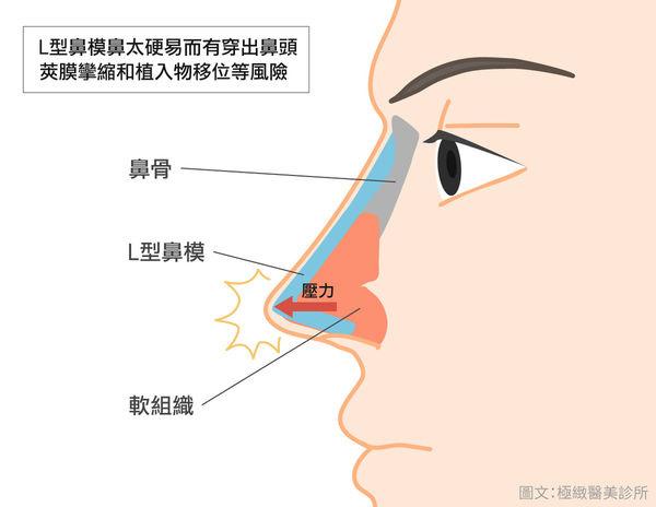 台北隆鼻手術極緻隆鼻多少錢極緻隆鼻好嗎隆鼻案例隆鼻手術選擇韓式隆鼻好嗎結構式隆鼻案例DCARD隆鼻極緻Dcard討論極緻醫美 (2).jpg