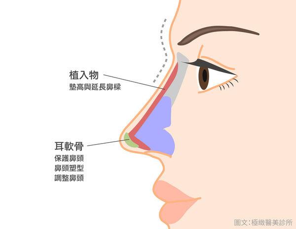 台北隆鼻手術極緻隆鼻多少錢極緻隆鼻好嗎隆鼻案例隆鼻手術選擇韓式隆鼻好嗎結構式隆鼻案例DCARD隆鼻極緻Dcard討論極緻醫美 (4).jpg