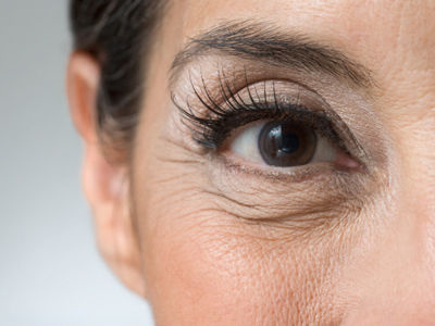 眼睛皺紋1.jpg