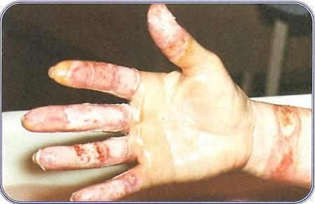 意外發生九天治療前