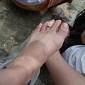 水腫的腳... 有點像浮屍@@ 才一個小時就兩截顏色