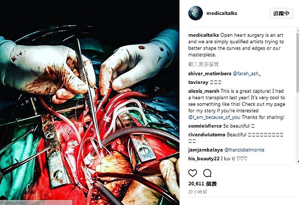 medicaltalks - 心臟手術的畫面.png