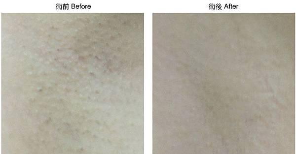 2012-諮詢本術前術後-雷射-日式光纖-除毛-01.jpg