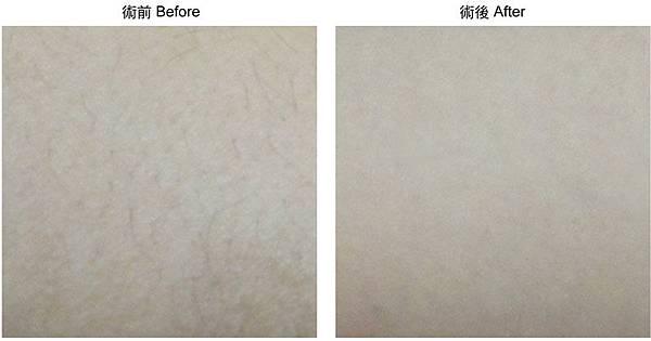 2012-諮詢本術前術後-雷射-日式光纖-除毛-02.jpg