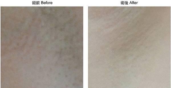 2012-諮詢本術前術後-雷射-日式光纖-除毛-04.jpg