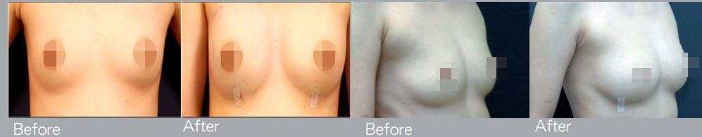自體隆乳.jpg