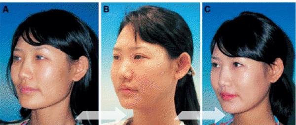 完美臉型-縮下顎.jpg