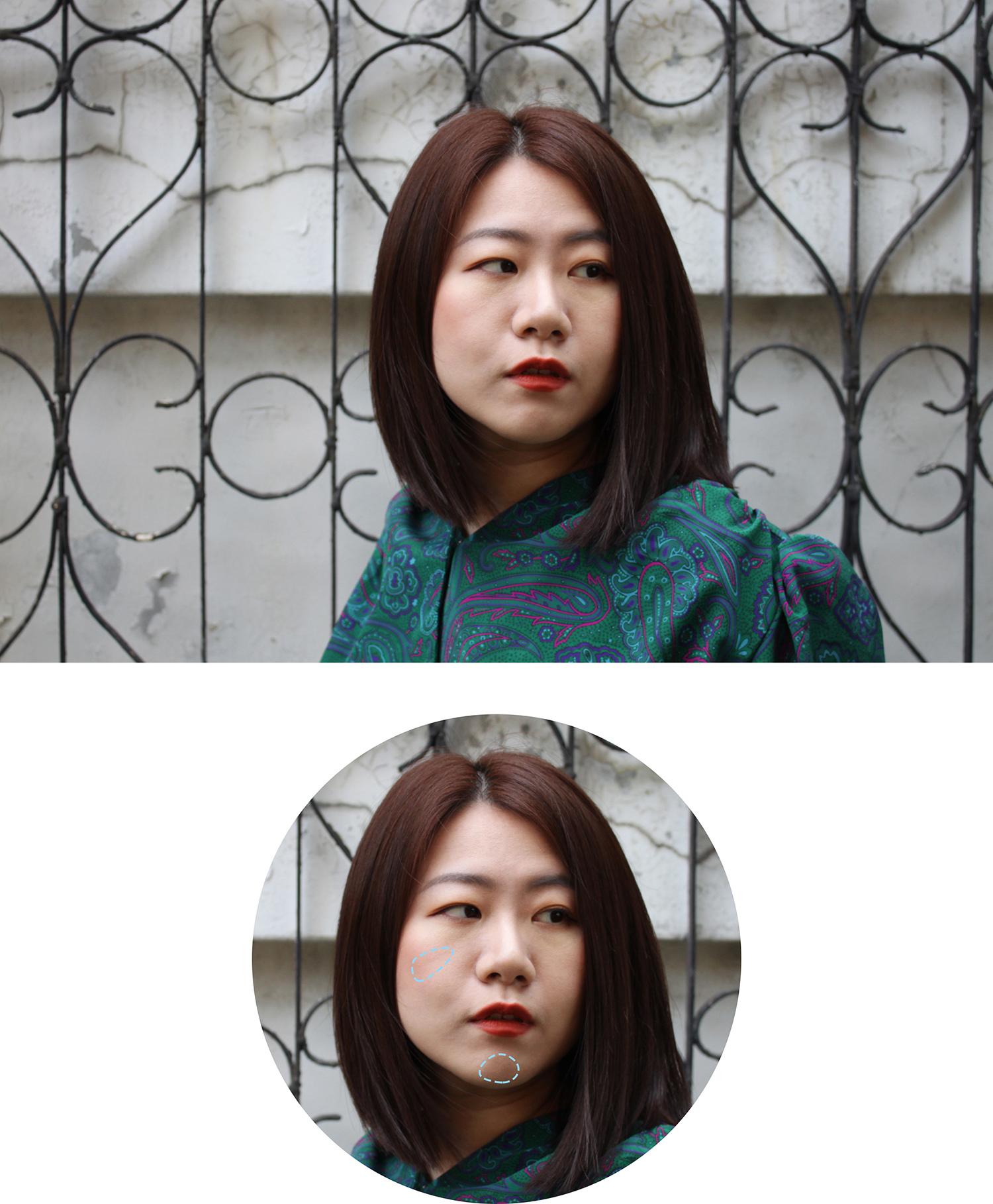 皮醫師法瑞爾醫美診所_洢蓮絲_淚溝 (2).jpg