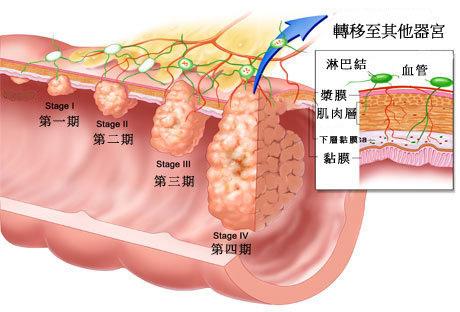 大腸癌.jpg