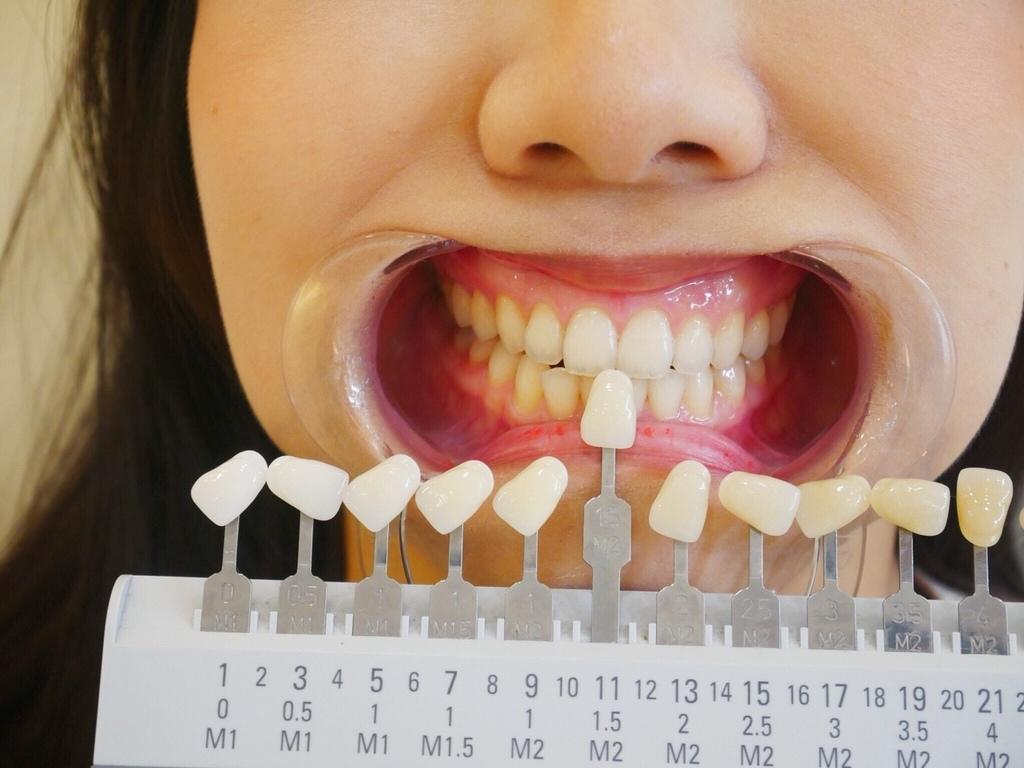 牙齒色階對照-台中牙齒美白推薦