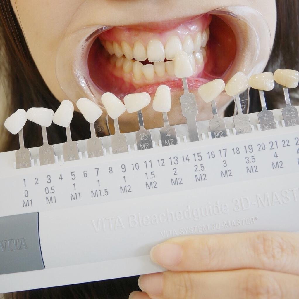 牙齒美白對照-台中牙齒美白推薦