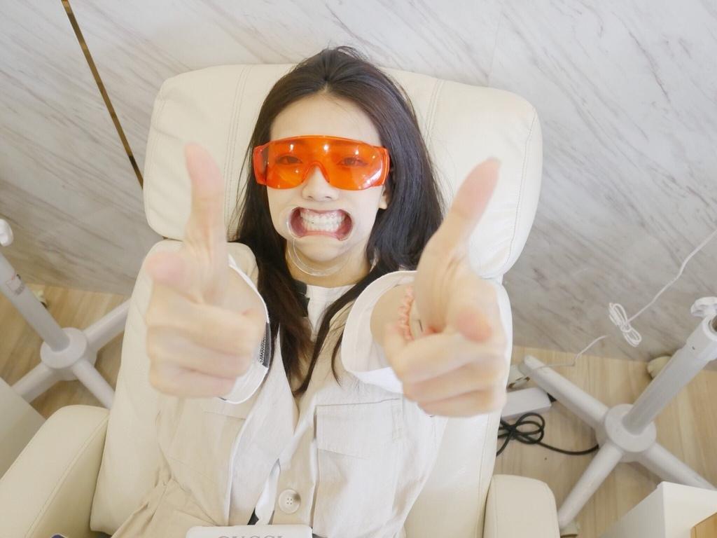 牙齒美白過程-台中牙齒美白推薦