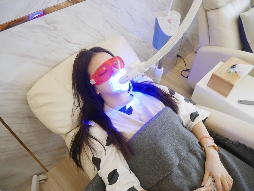 美白牙齒-台中牙齒美白推薦